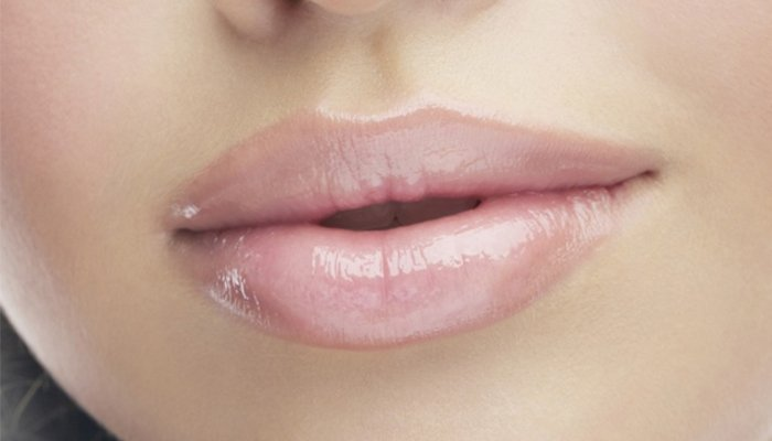 Aumento Labios - Dr Carla Barber