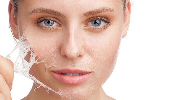 Peeling químico - Dr Carla Barber